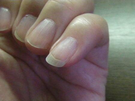 4週間後の爪