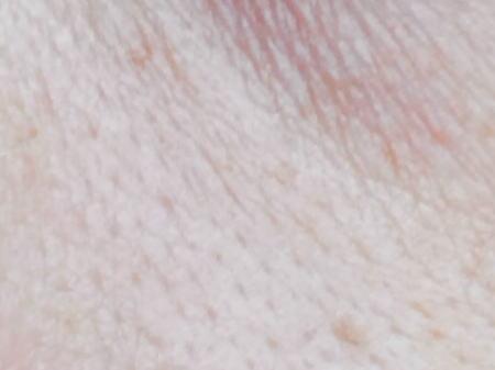 毛穴のイメージ